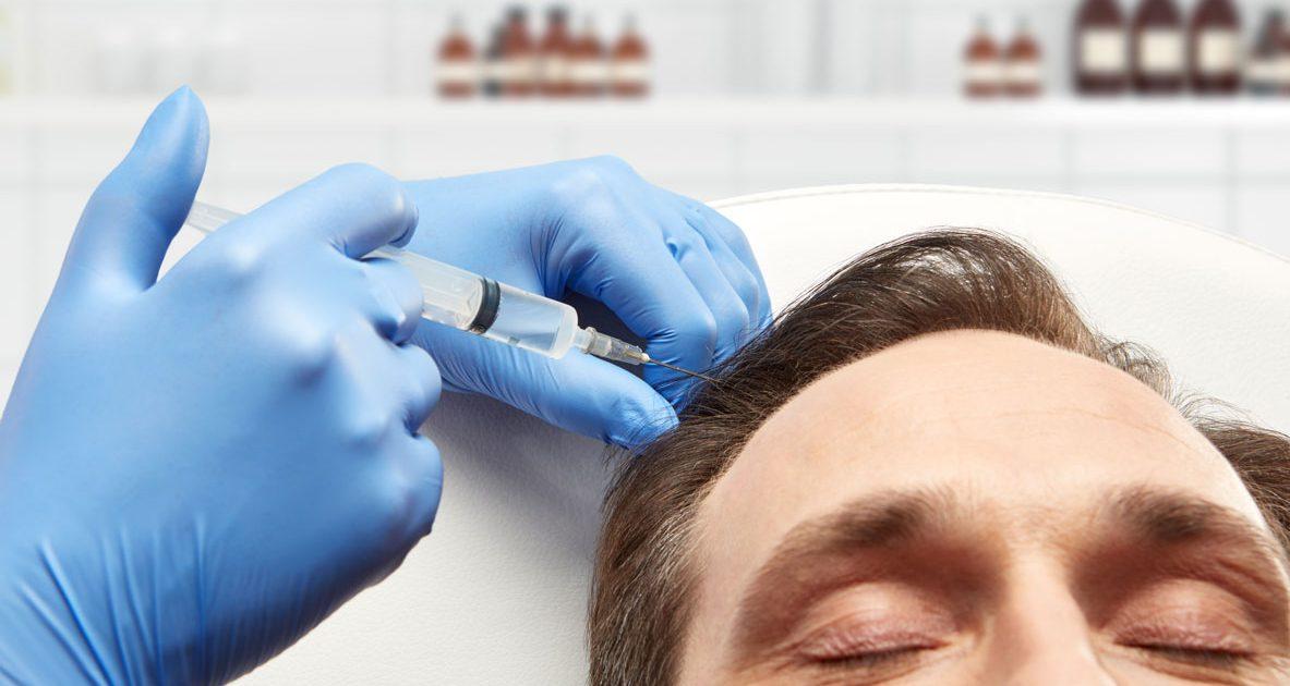 Tratamiento PRP Plasma Rico en Plaquetas